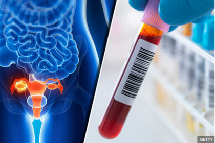 NEW BLOOD TEST DEVELOPED TO DIAGNOSE OVARIAN CANCER